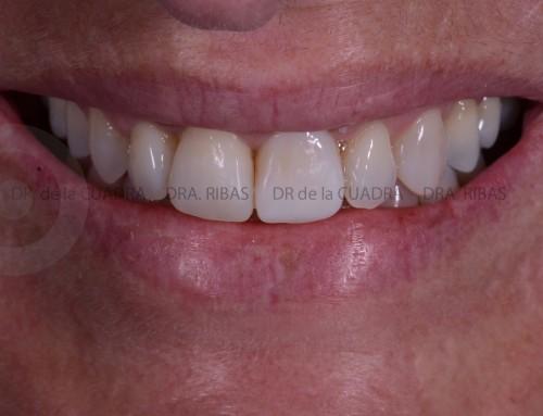 Ortodoncia en Adultos.