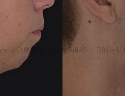 Ortodoncia + Cirugía Ortognática