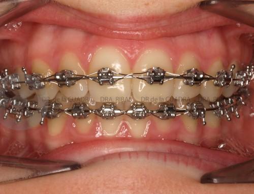 Tipos de Tratamiento de Ortodoncia.