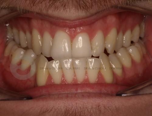 Tratamiento combinado de Ortodoncia y Cirugía Ortognática. Clase III